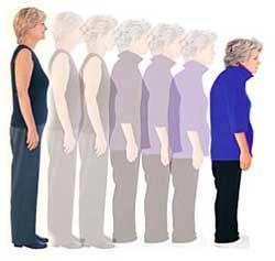 Oszteoporózis folyamata